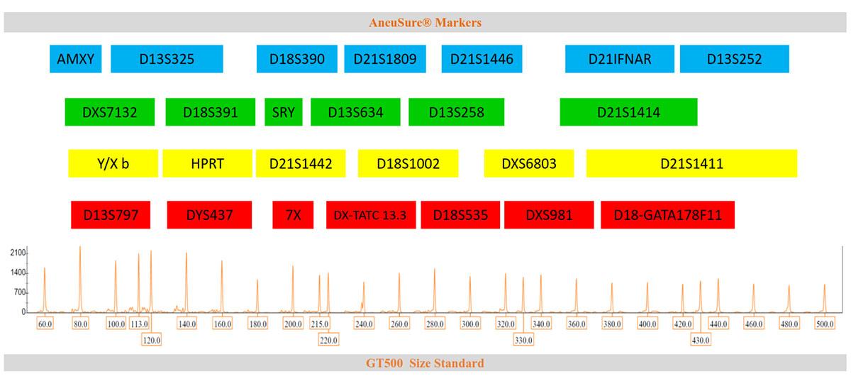 Marker arrangement in AneuSure for prenatal diagnosis of chromosomal aneuploidy