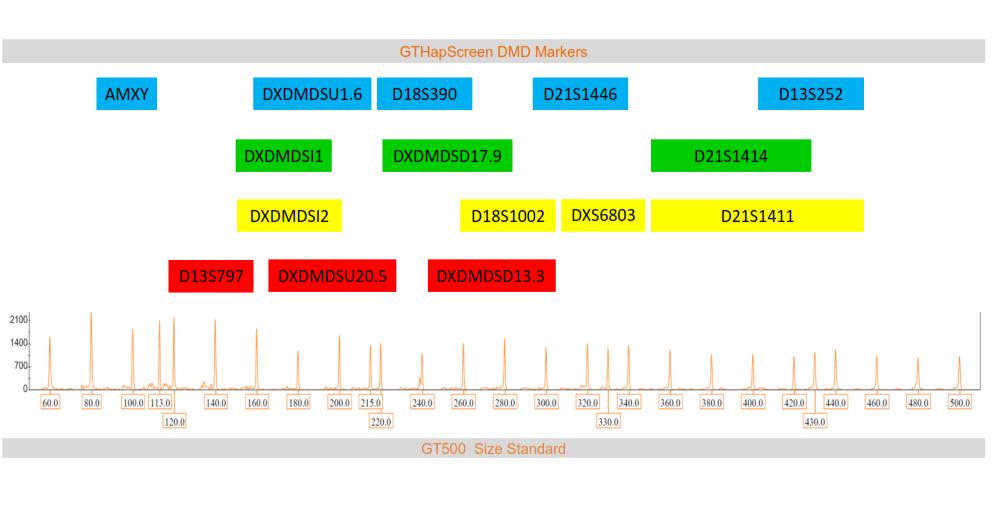 Marker arrangement in GTHapScreen DMD 5-dye QF-PCR kit for Duchenne or Becker Muscular Dystrophy diagnosis